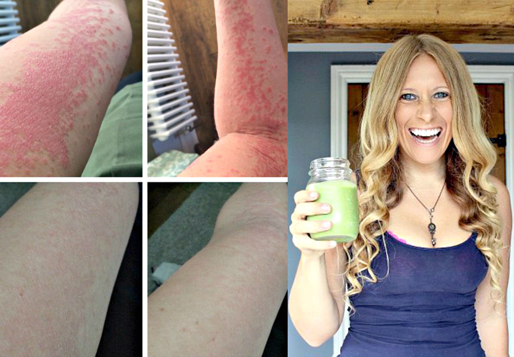 She Healed Psoriasis With This Diet After She Was Offered CHEMO for Her Skin Psoriasis-diet-4